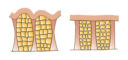 Kůže scelulitidou – Kůže bez celulitidy